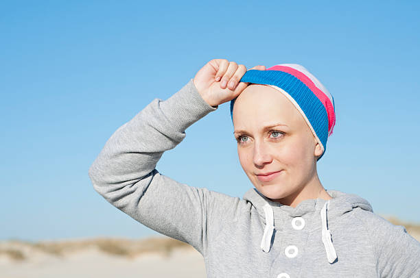 young woman showing bald head as secondary effect of chemotherapy stock photo