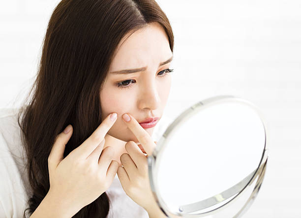 young woman squeeze her acne in front of the mirror ストックフォト