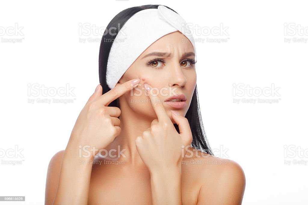 Young woman squeezing her pimple - foto stock