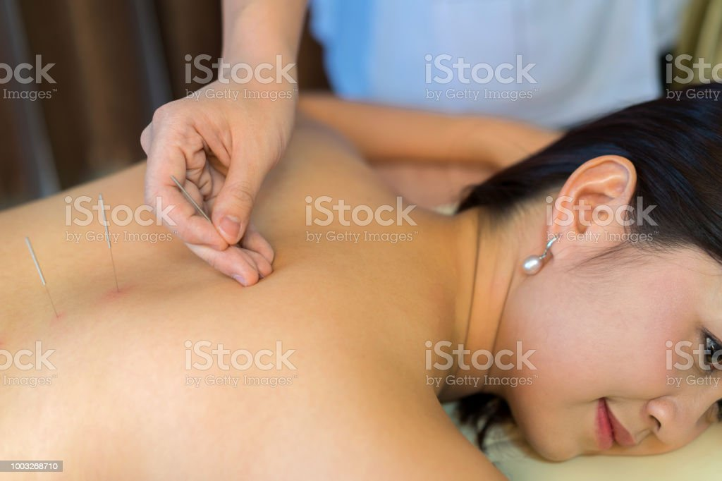 young woman undergoing acupuncture treatment at the health spa.