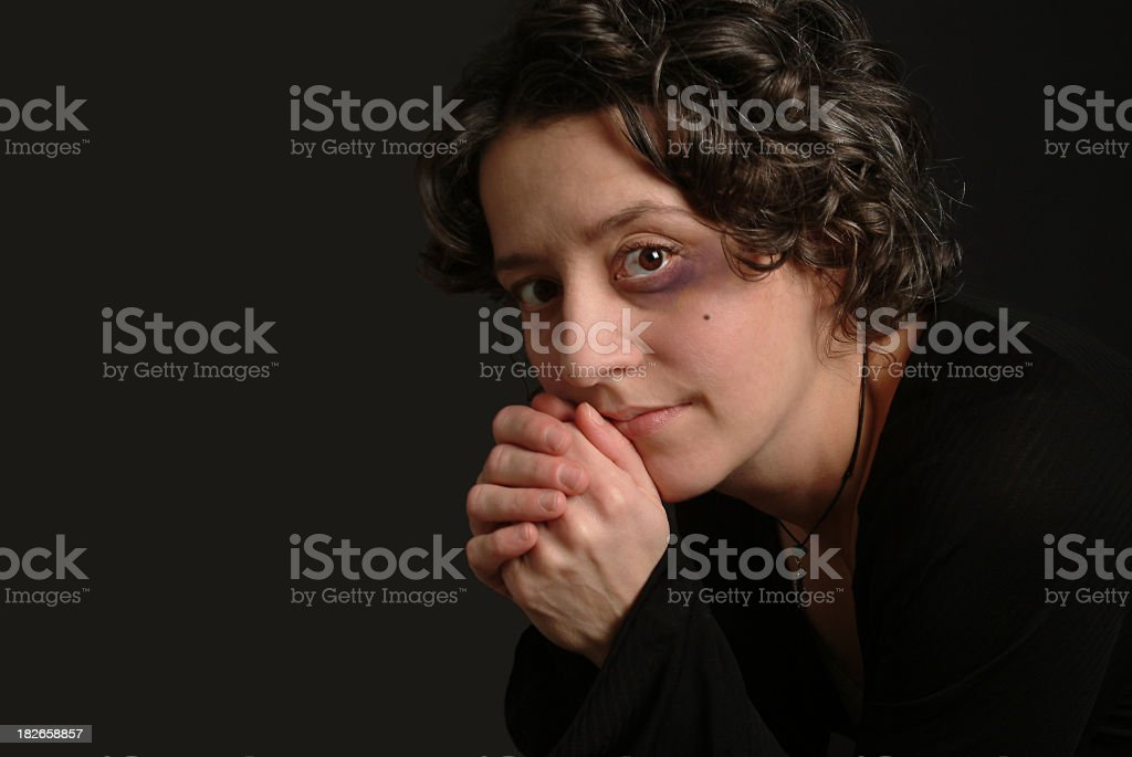 Young Woman Who has a Black Eye from Domestic Abuse stock photo