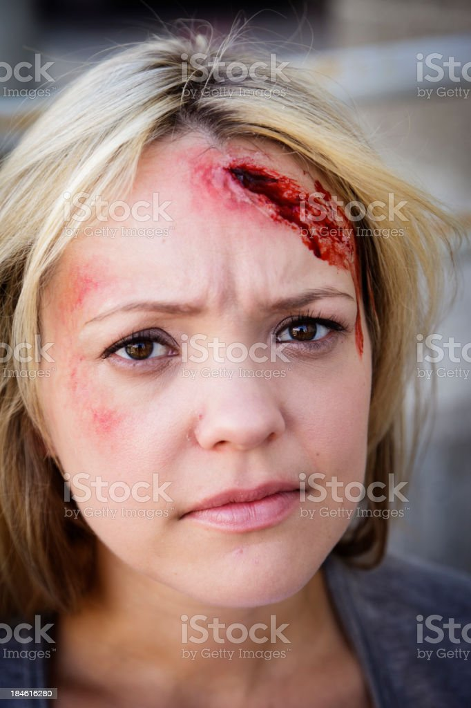 A pretty young woman looking up at a bad head injury.