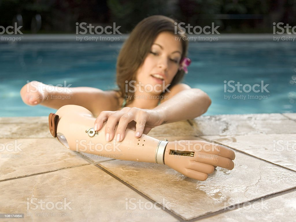 Young Woman with a Prosthetic Arm stock photo