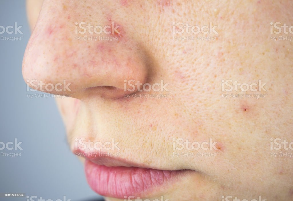 manchas marrones en la piel acne