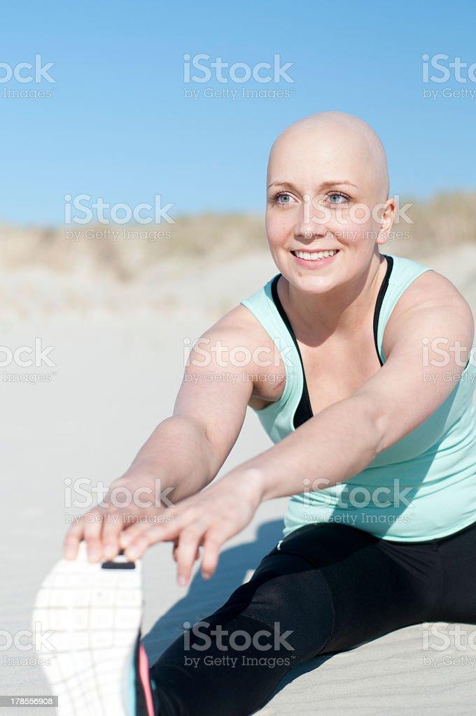 Junge Frau mit bald head besonders nach zeitlosen Chemotherapie – Foto