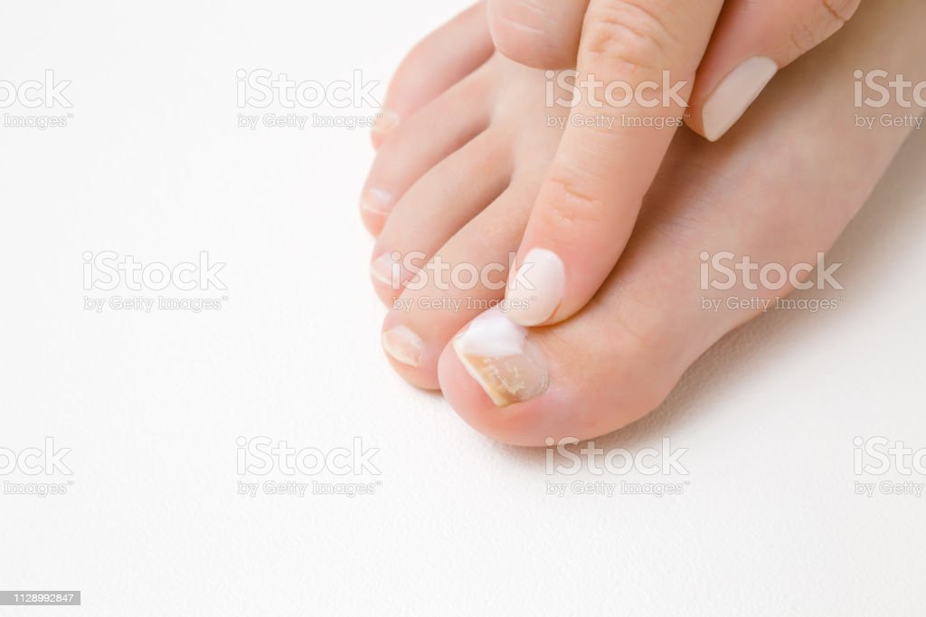 Fußnägel weiße Schwarzer Zehennagel: