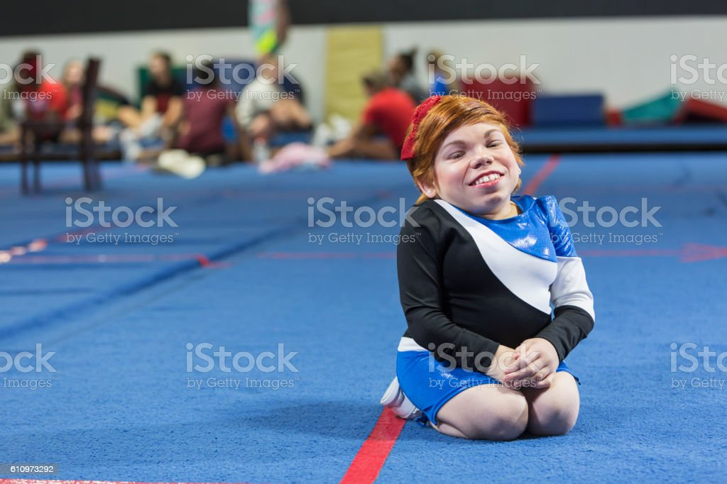 Young woman with Morquio syndrome in cheerleader uniform stock photo
