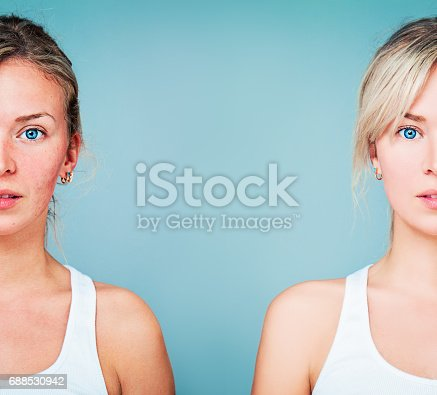 istock Young Woman with Perfect Skin and Skin Problem. Unhealthy and Healthy Skin After Treatment 688530942