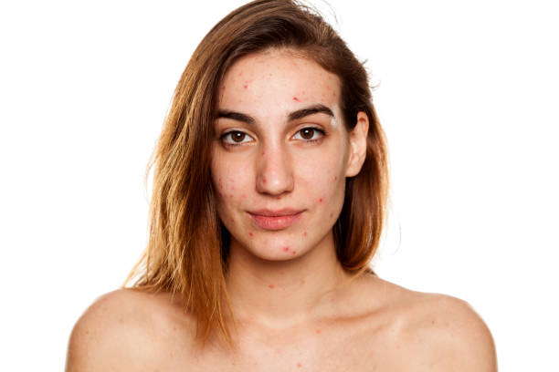 young woman with problematic skin and without makeup poses on a white background stock photo
