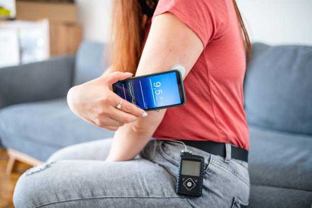 молодая женщина с диабетом типа 1 swiping датчик с телефоном - medical technology стоковые фото и изображения