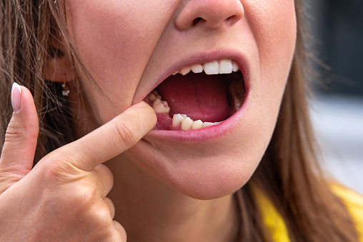Young woman without tooth on lower jaw. Missing tooth. Waiting an implant after tooth extraction. High quality photo