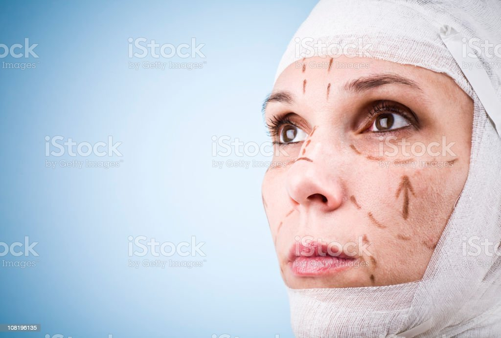 Young Woman's Head Wrapped in Bandages with Markings on Face royalty-free stock photo