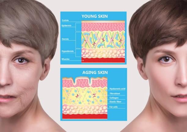 Jüngere und alternde Haut. Elastin und Kollagen. – Foto