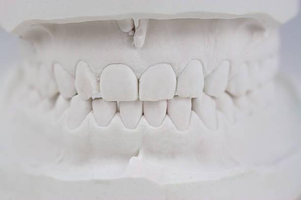 Zaehne Gipsabdruck – Foto
