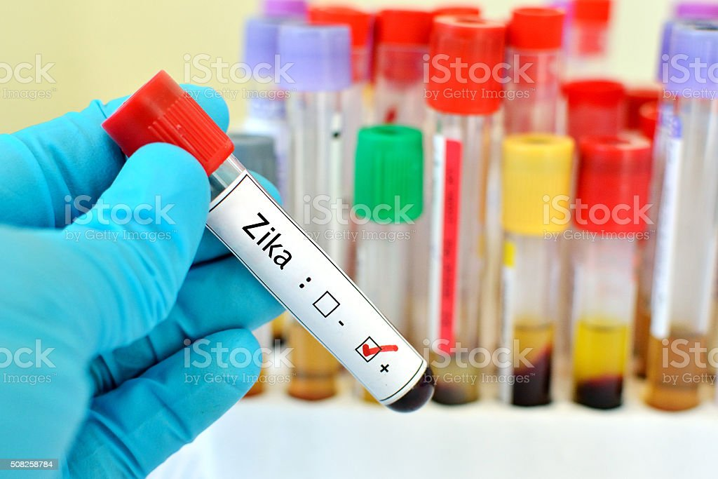 Zika virus positive stock photo