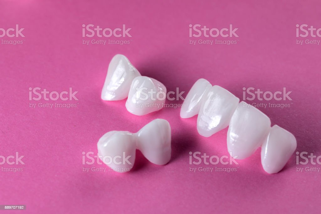 Prothèses de zircon sur un fond rose - facettes en céramique - lumineers - Photo