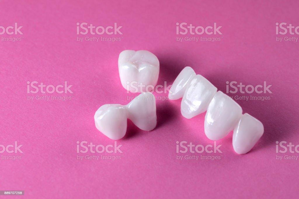 Zirkon Zahnersatz auf einem rosa Hintergrund - Keramik-Veneers - lumineers - Lizenzfrei Ausrüstung und Geräte Stock-Foto