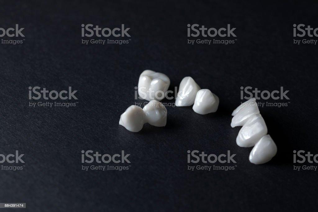 prothèses sur fond sombre - prothèses dentaires en céramique - zircone - Photo