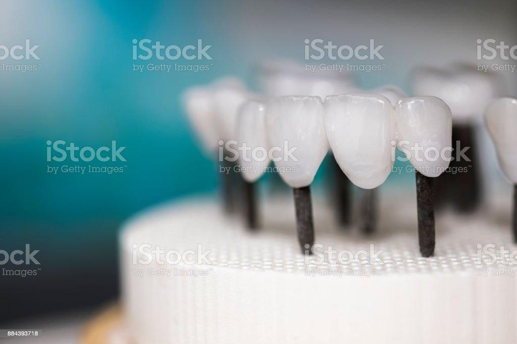 prothèses sur ses dernières étapes - prothèses dentaires en céramique - zircone - Photo
