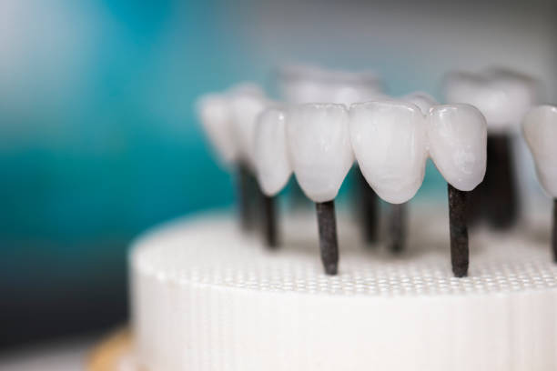 zirconia dentures on it's last steps - Ceramic dentures - zirconia dentures is used for cosmetic purposes in dental clinics tooth crown stock pictures, royalty-free photos & images