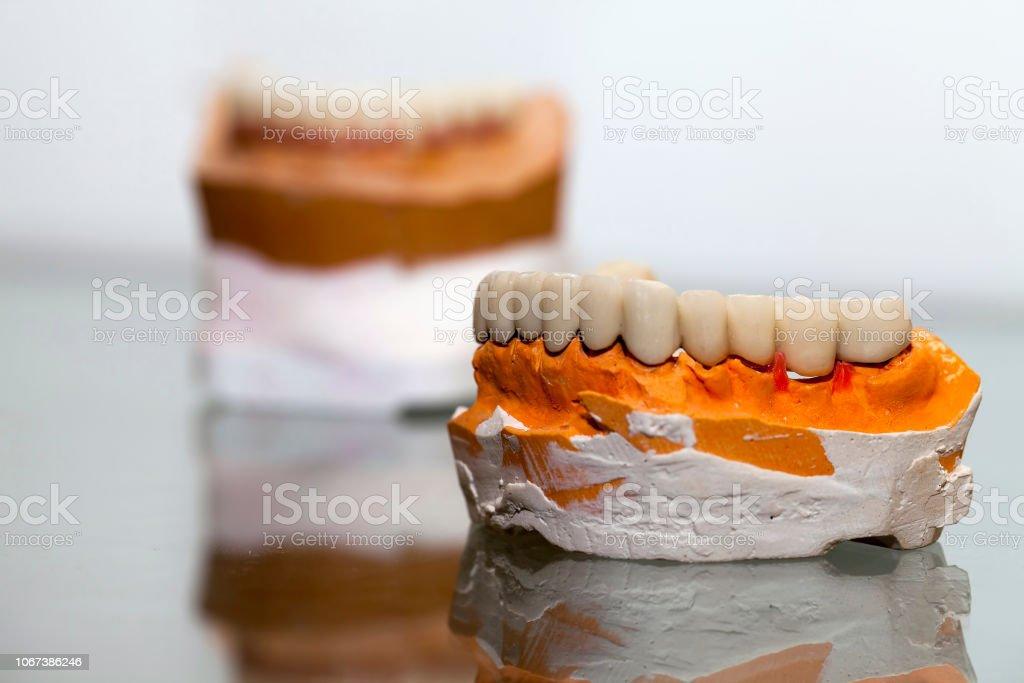 Plaque de porcelaine dent de zirconium dans magasin de dentiste - Photo