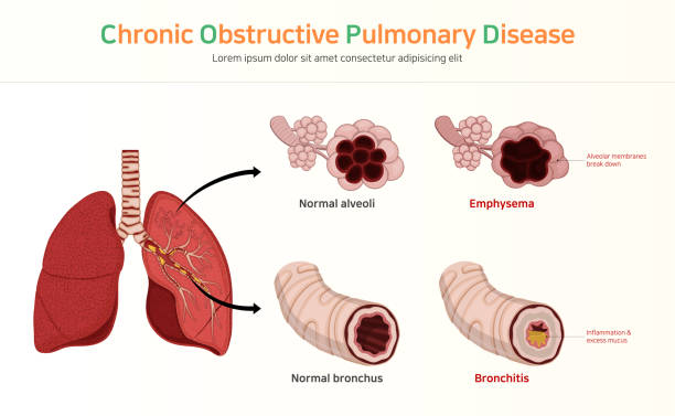 COPD (Chronic Obstructive Pulmonary Disease) COPD (Chronic Obstructive Pulmonary Disease) alveolar duct stock illustrations