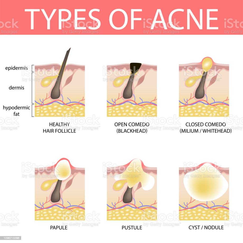 Best Acne Illustrations  Royalty-free Vector Graphics  U0026 Clip Art