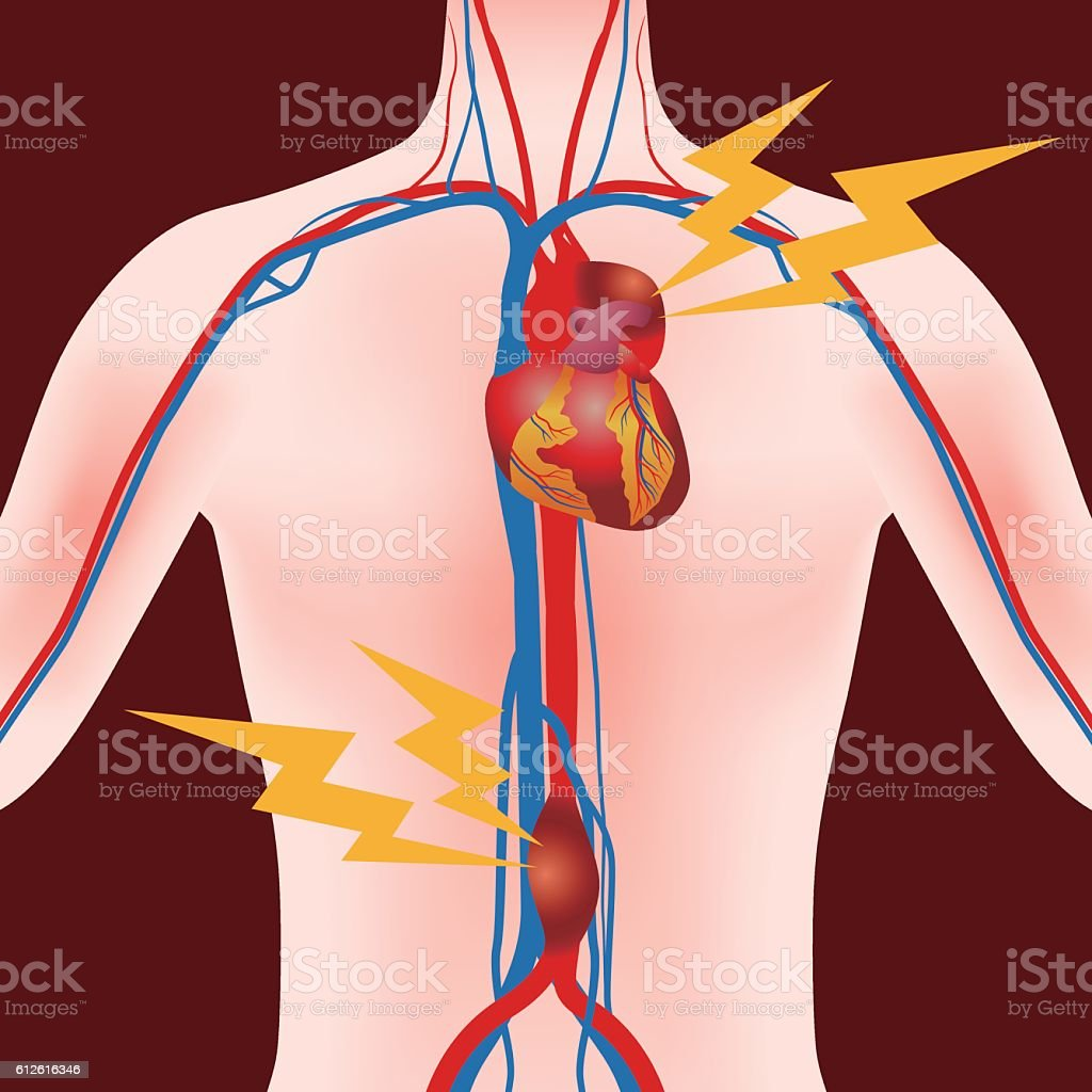 Abdominal Aortic Aneurysm and Thoracic Aortic Aneurysm vector art illustration