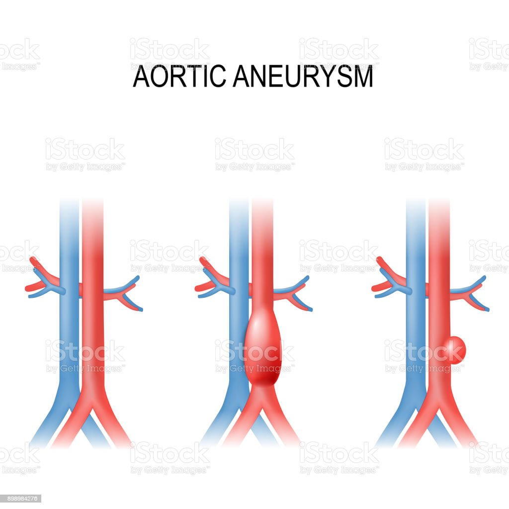 abdominal aortic aneurysm vector art illustration