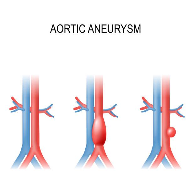 abdominal aortic aneurysm vector art illustration