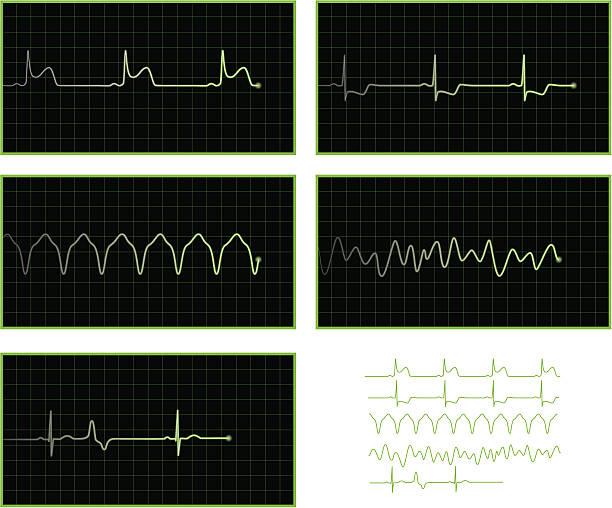 Abnormal ECG waves vector art illustration