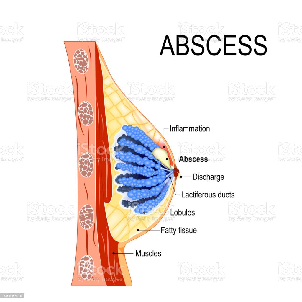 Abscess Crosssection Of The Mammary Gland With Inflammation Of The ...