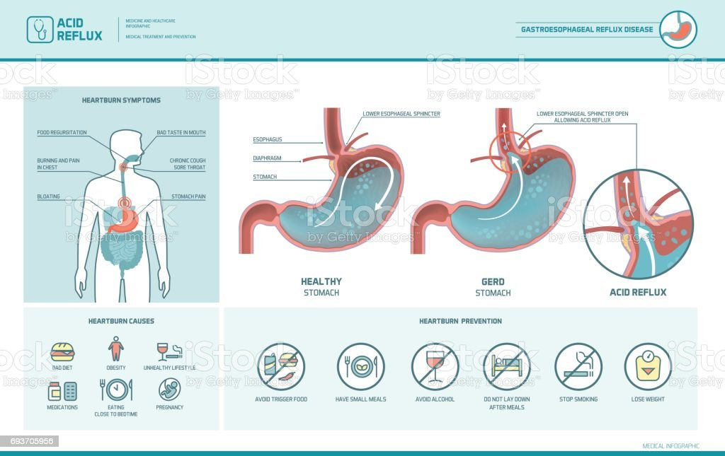 Acid reflux and heartburn infographic vector art illustration