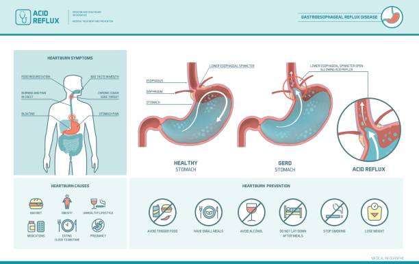 Acid reflux and heartburn infographic Acid reflux, heartburn and gerd infographic with stomach medical illustration, symptoms, causes and prevention abdomen stock illustrations