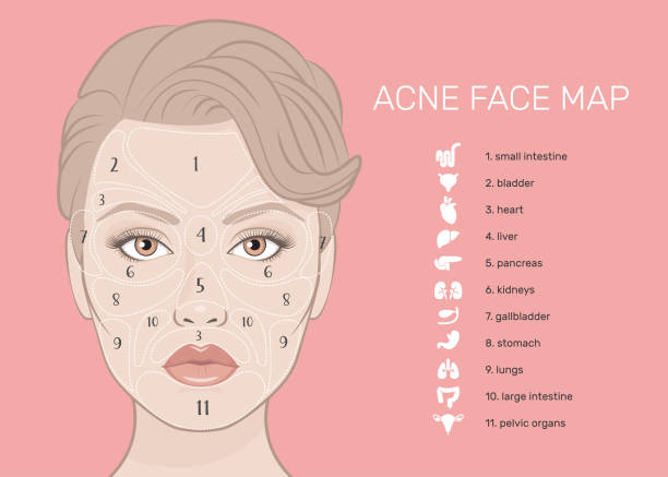 Acne Face Map. Vector illustration of beauty woman face. Viscera location map on the face. What your skin is telling you. Skin Mapping. The internal organs of the human icons set. inflammation stock illustrations