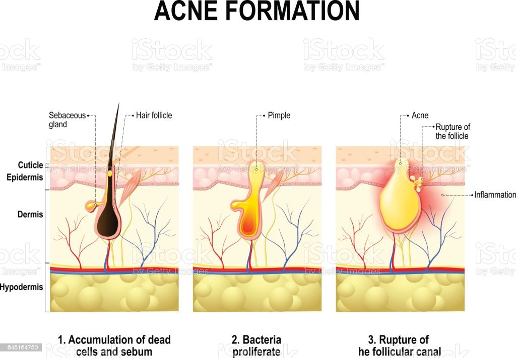 acne formation. human skin. vector art illustration