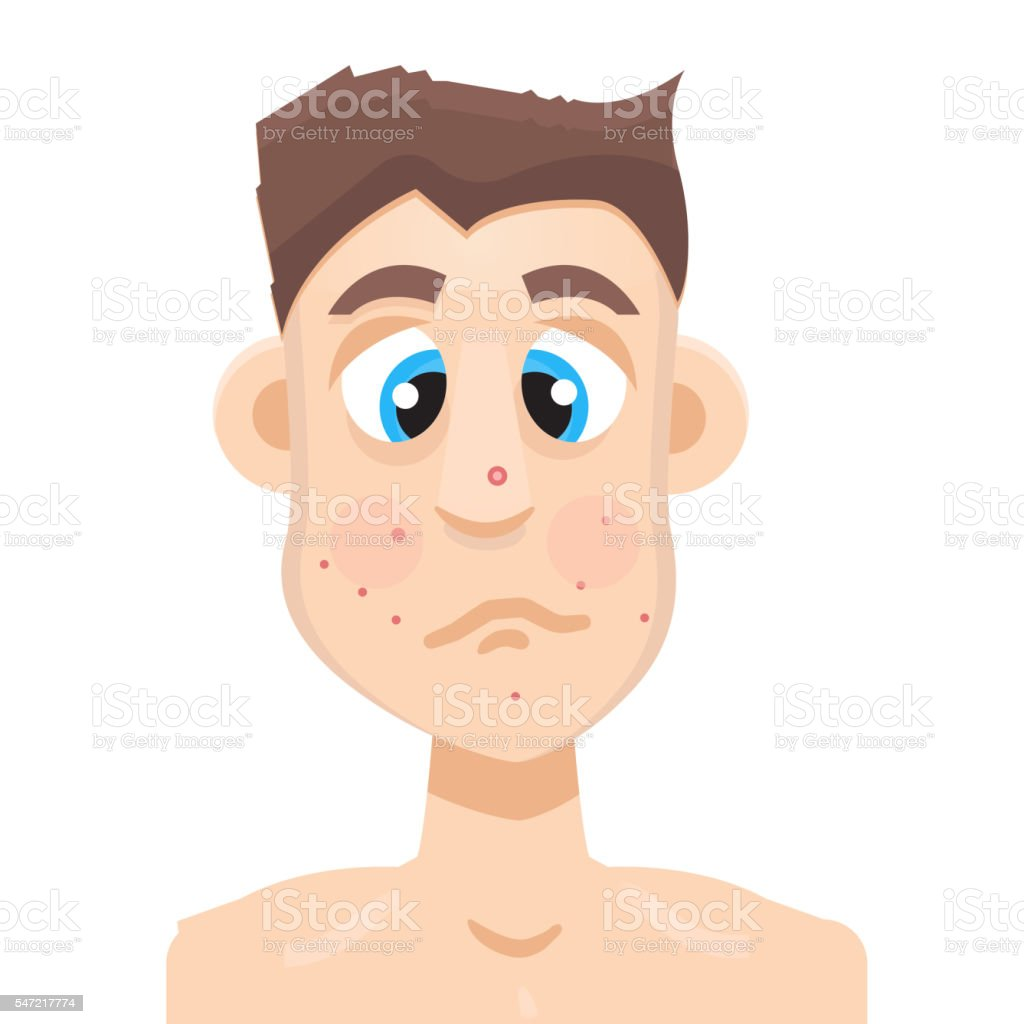Best Cartoon Of The Acne Scars On Face Illustrations  Royalty