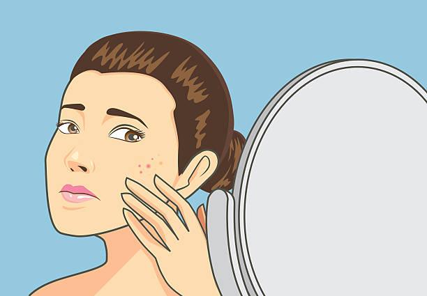Acne skin on women face vector art illustration