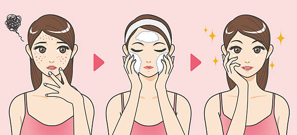 acne treatment before after, facial cleansing foam vector art illustration