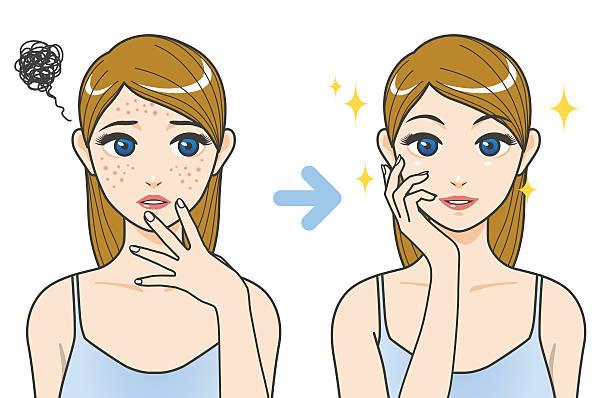 Acne Treatment Clipart