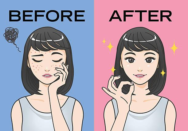 acne treatment before after image illustration vector art illustration
