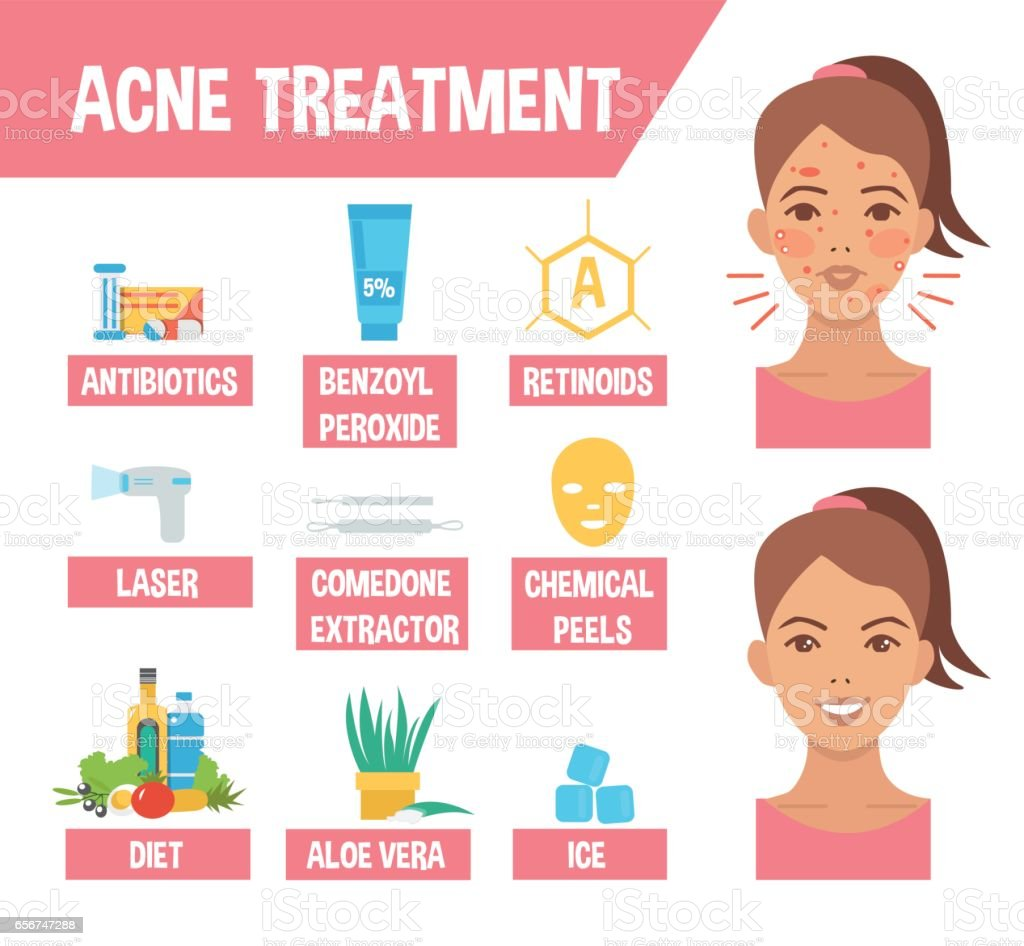 tratamiento del acne vulgaris