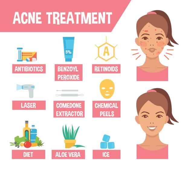 acne treatment vector art illustration