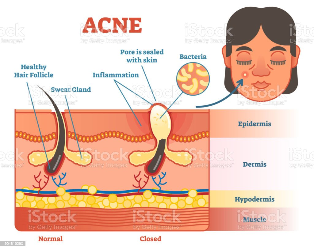 Acne Vector Diagram Illustration With Hair Pimple Skin
