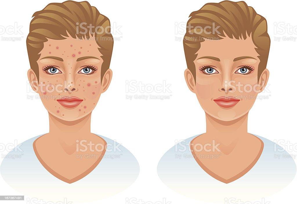 Acne royalty-free stock vector art