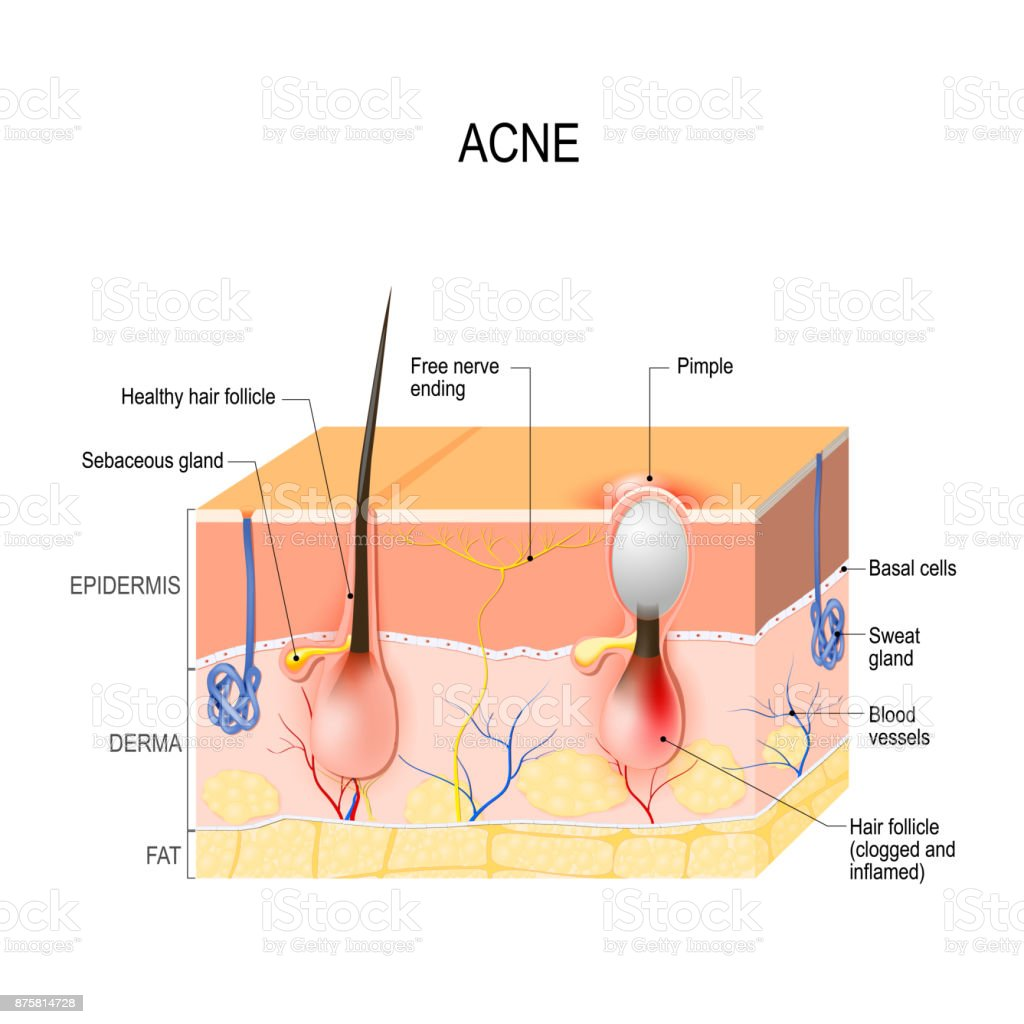 Acne Vulgaris Or Pimple Healthy Hair Follicle And Clogged Pore Stock ...