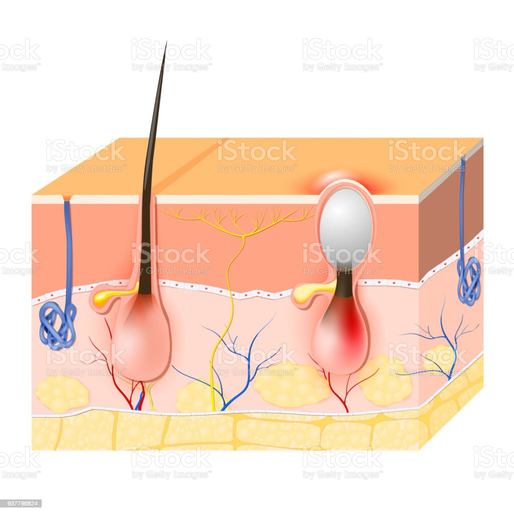 Acne Vulgaris Or Pimple Stock Vector Art & More Images of Acne ...