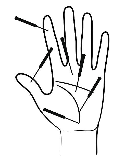 Acupunctured mano - ilustración de arte vectorial