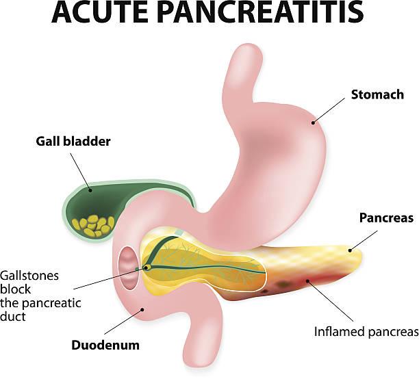 Acute pancreatitis vector art illustration