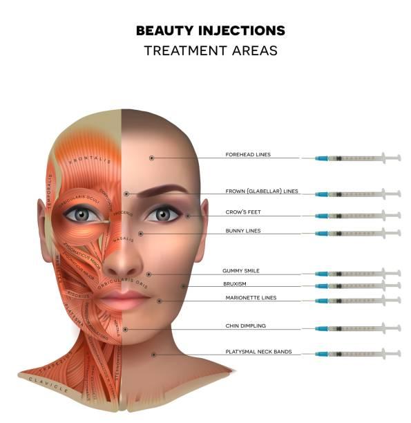 613 Botox Illustrations & Clip Art - iStock